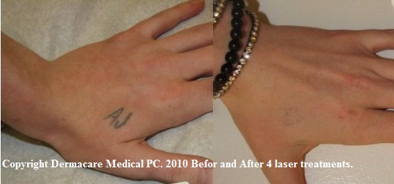 Tattoo before and after Laser treatment hand Palomar Q Yag 5
