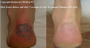 heel tattoo before and after laser tattoo removal